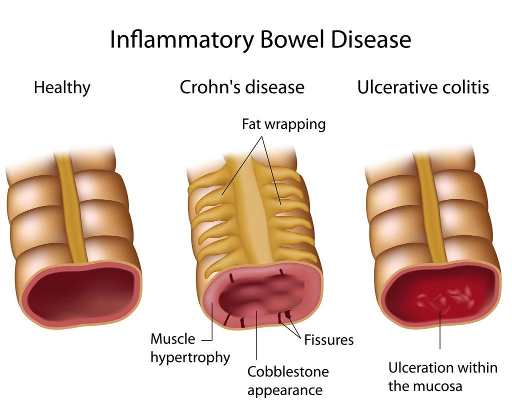 Crohn's and UC