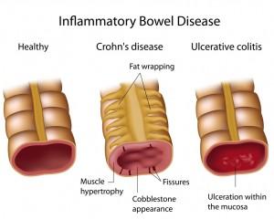 Crohns and Ulcerative Colitis (UC)