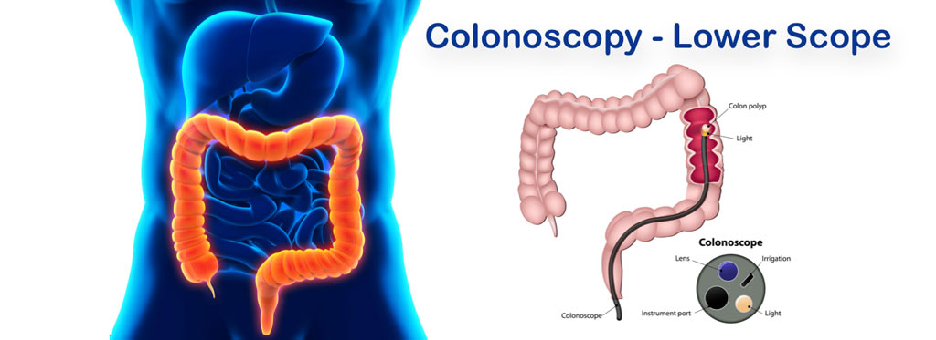 Colnscopy Pediatric Gastroenterologist