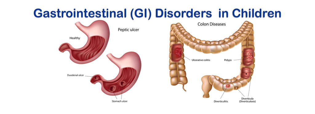 GI-disorders-dr-dave-1
