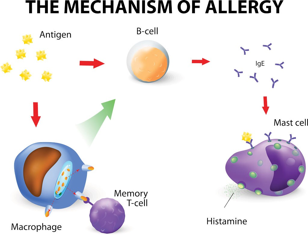 Mechanism-of-allergy