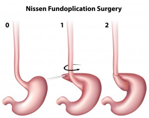 antireflux surgery (Nissen Fundoplication)