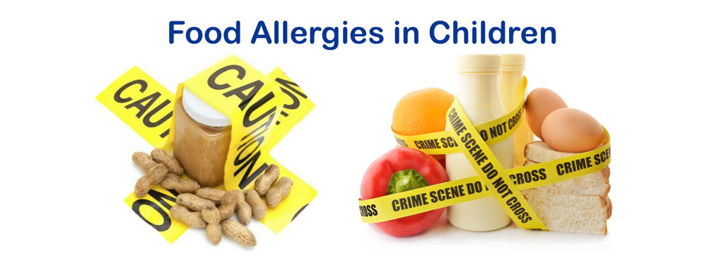 food-allergies-1