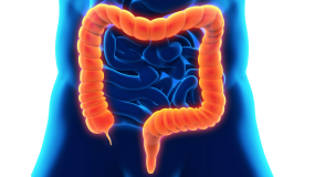 Inflammatory Bowel Disease (IBD) in Children