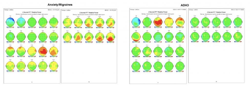 quantitative electroencephalograph assessment