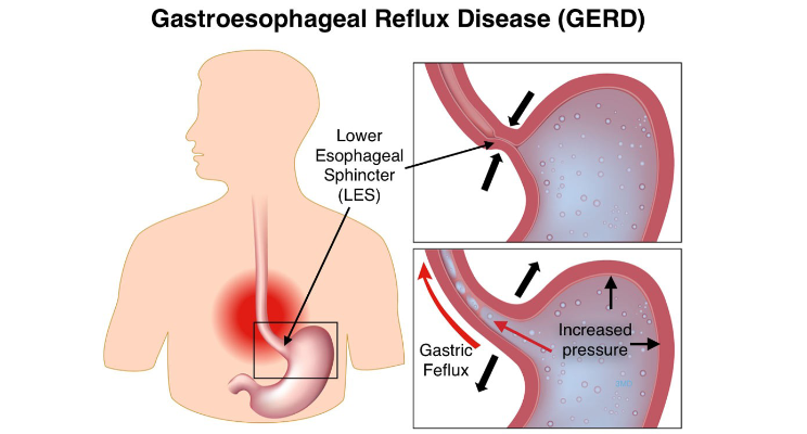 Image result for Gastroesophageal reflux